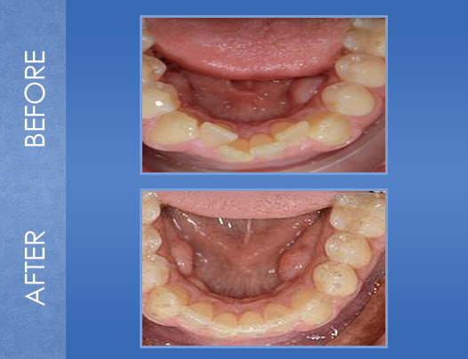 dental treatment before and after